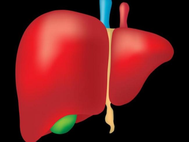 Study links rheumatoid arthritis to liver disease