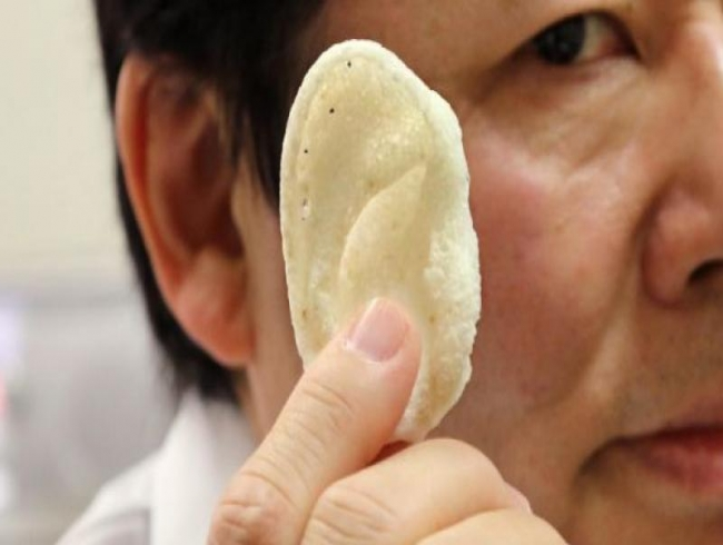 3D-printed ear implants can improve treatment for hearing loss